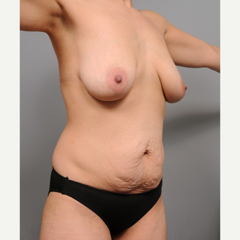 35-44 year old woman treated with Mommy Makeover before 3669461