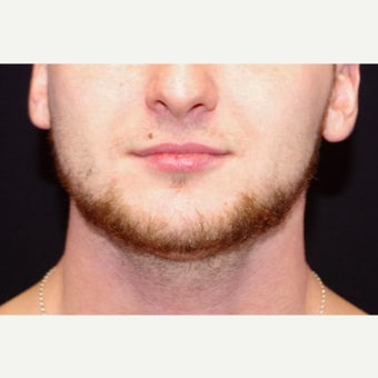 18-24 year old man treated with CoolSculpting to the Chin; 2 months post-op after 2670950