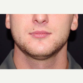 18-24 year old man treated with CoolSculpting to the Chin; 2 months post-op before 2670950
