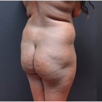 25-34 year old woman treated with Fat Transfer before 3363849