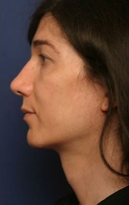 45-54 year old woman treated with Facial Feminization Surgery 1790512