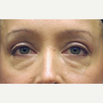 35-44 year old woman treated with Eyelid Surgery before 3783048