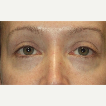 35-44 year old woman treated with Eyelid Surgery after 3783048