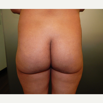 25-34 year old woman treated with Butt Augmentation before 3071652