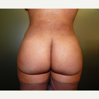 25-34 year old woman treated with Butt Augmentation after 3071652