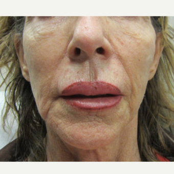 77 year old woman treated with Radiesse and Restylane before 3121331