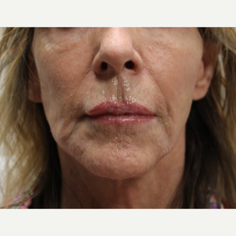 77 year old woman treated with Radiesse and Restylane after 3121331