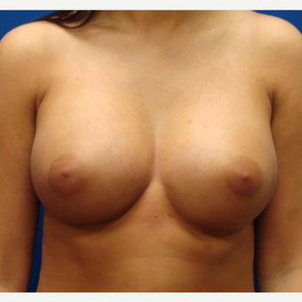 18-24 year old woman treated with Breast Implants after 3669366