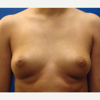 18-24 year old woman treated with Breast Implants before 3669366
