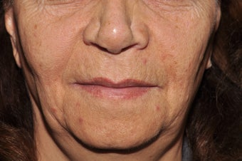 Patient seeking improvement in lines around her mouth and lips after 1250688