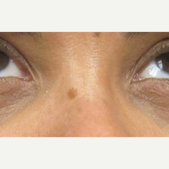 35-44 year old woman treated with Laser Treatment before 3305877