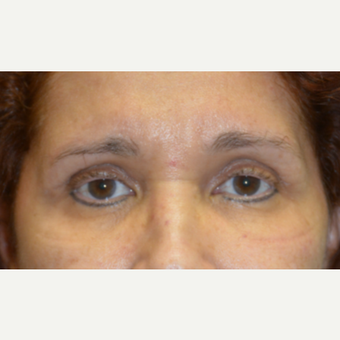 45-54 year old woman treated with Brow Lift after 3458315