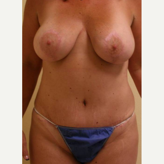 45-54 year old woman treated with Mommy Makeover after 3434676