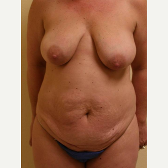 45-54 year old woman treated with Mommy Makeover before 3434676