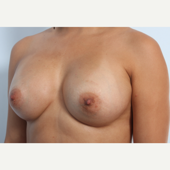 Breast Augmentation after 3340194
