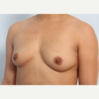 Breast Augmentation before 3340194