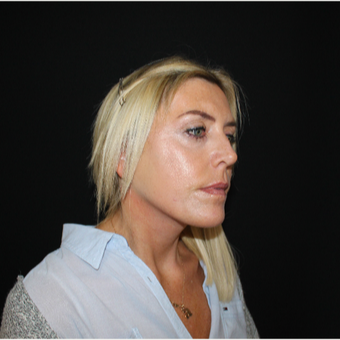 45-54 year old woman treated with Facelift after 3493985