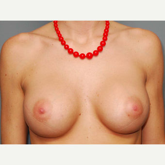 24 y/o Transaxillary Submuscular Breast Augmentation after 3066484