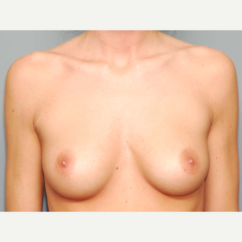24 y/o Transaxillary Submuscular Breast Augmentation before 3066484
