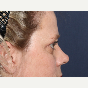 35-44 year old woman treated with Eyelid Surgery (view 2 of 2) before 3246843