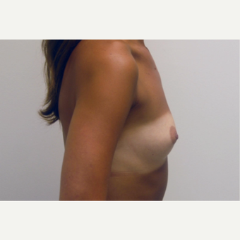 35-44 year old woman treated with Breast Augmentation before 3377559