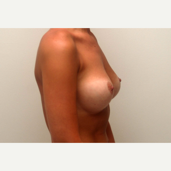 35-44 year old woman treated with Breast Augmentation after 3377559