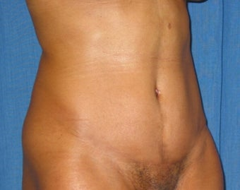 35 year old woman treated with Tummy Tuck after 2285641