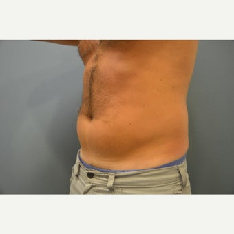25-34 year old man treated with UltraShape before 1580264