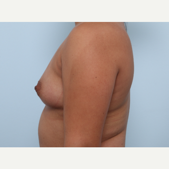 Breast Augmentation before 3345853