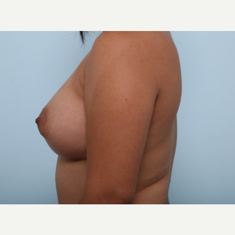 Breast Augmentation after 3345853