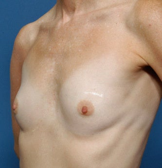 56 Year Old Female Treated For Near Complete Lack Of Breast Tissue 1397161