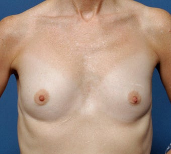 56 Year Old Female Treated For Near Complete Lack Of Breast Tissue before 1397161