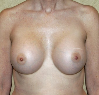 56 Year Old Female Treated For Near Complete Lack Of Breast Tissue after 1397161