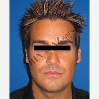 35-44 year old man treated with Chin Implant after 1829894