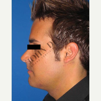 35-44 year old man treated with Chin Implant 1829894