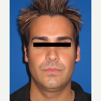 35-44 year old man treated with Chin Implant before 1829894
