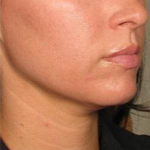 35-44 year old woman treated with Ultherapy
