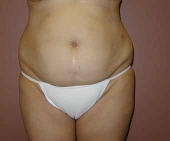 Tummy Tuck Before & After Pictures - RealSelf