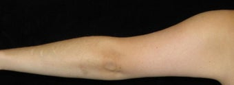 26 year old woman treated with Arm Lift and Liposuction After Weight Loss 3251860