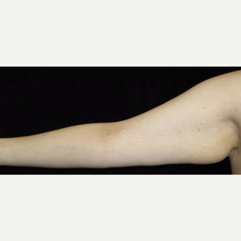 26 year old woman treated with Arm Lift and Liposuction After Weight Loss before 3251860