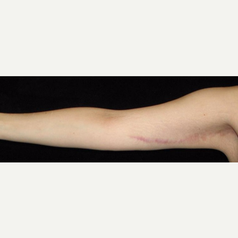 26 year old woman treated with Arm Lift and Liposuction After Weight Loss after 3251860