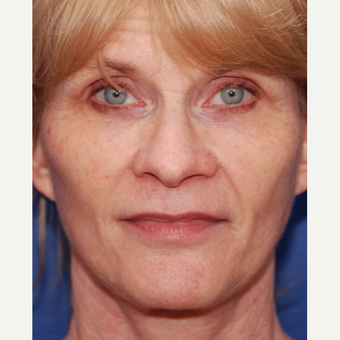 55-64 year old woman treated with Facelift after 3625206