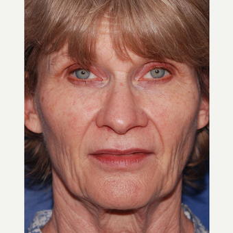 55-64 year old woman treated with Facelift before 3625206
