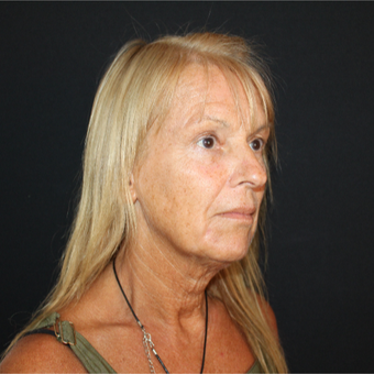 55-64 year old woman treated with Facelift before 3493541