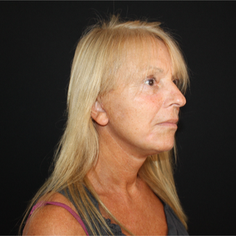 55-64 year old woman treated with Facelift after 3493541
