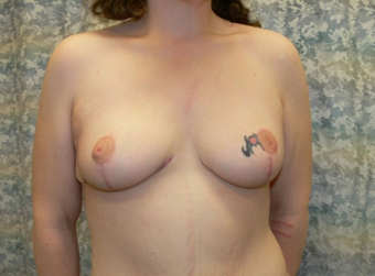 25-34 year old woman treated with Breast Lift after 1536095