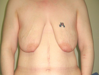 25-34 year old woman treated with Breast Lift before 1536095