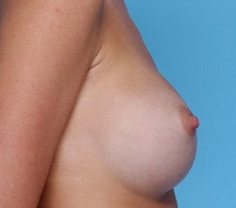 Breast augmentation with Silicone Implants after 67257