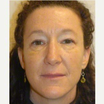 55-64 year old woman treated with Liquid Facelift after 3510913
