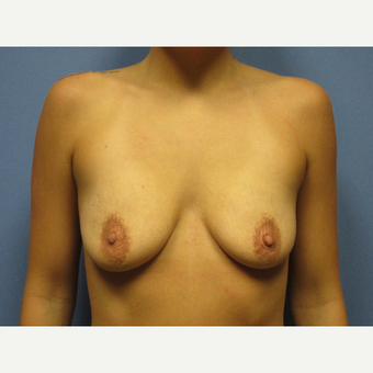 25-34 year old woman treated with Breast Implants before 3635410